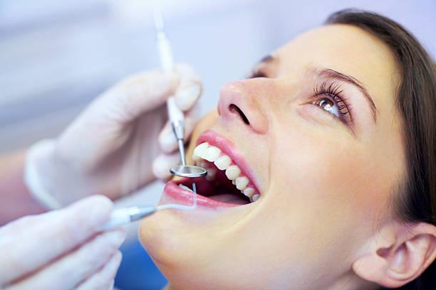 lấy cao răng nha khoa