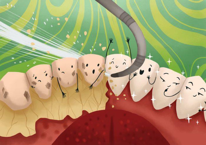 lấy cao răng mảng bám