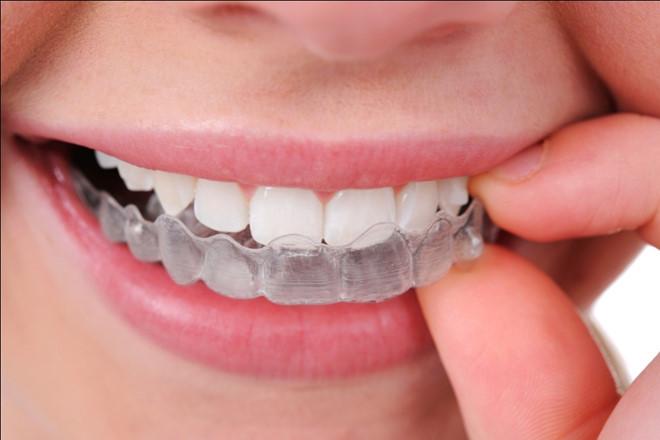 Chế độ chăm sóc sau niềng răng không mắc cài