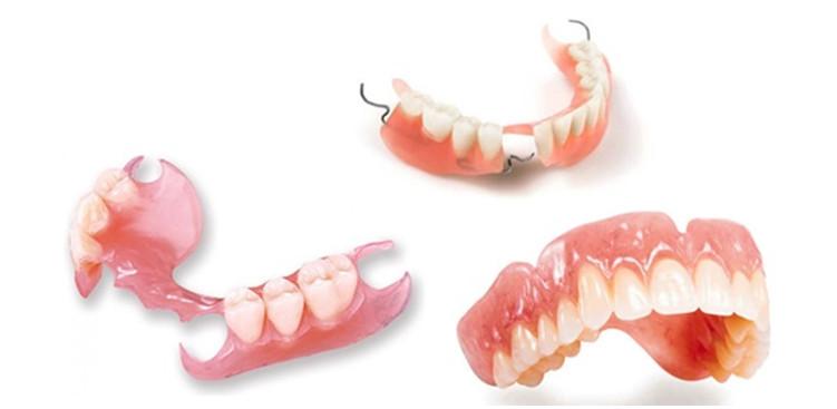 Ưu nhược điểm của răng giả tháo lắp