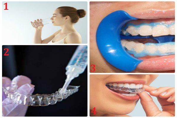 Tẩy trắng răng bằng máng tẩy